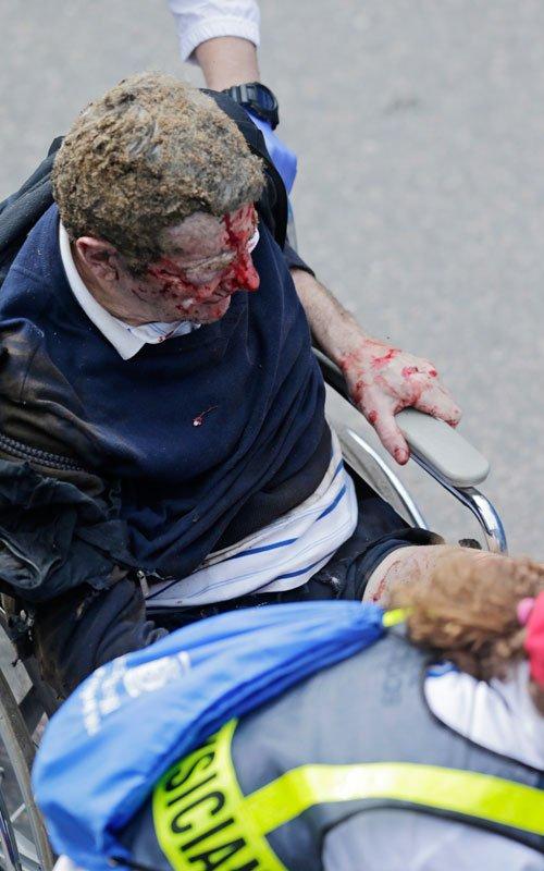 Otra víctima del atentado en el maratón de Boston