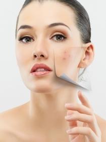 Los problemas más comunes (y odiados) de nuestra piel