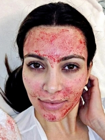 Así son los tratamientos de belleza más locos de las famosas
