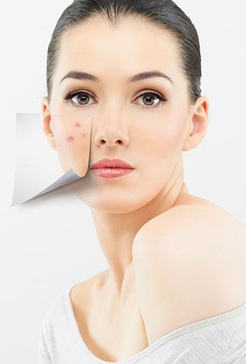 Manchas Y Cicatrices Por Los Granos Cómo Eliminar Las Marcas Del Acné