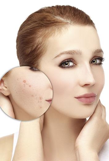 Como acabar con acne