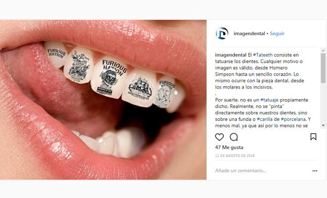 Tatteeth Te Harías Un Tatuaje Dental