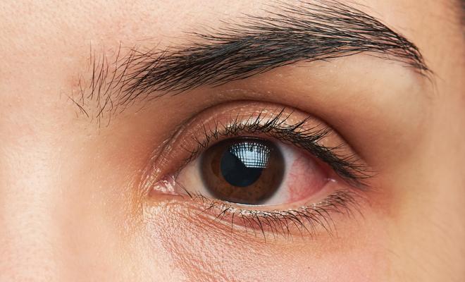 Síntomas de la alergia a la sombras de ojos