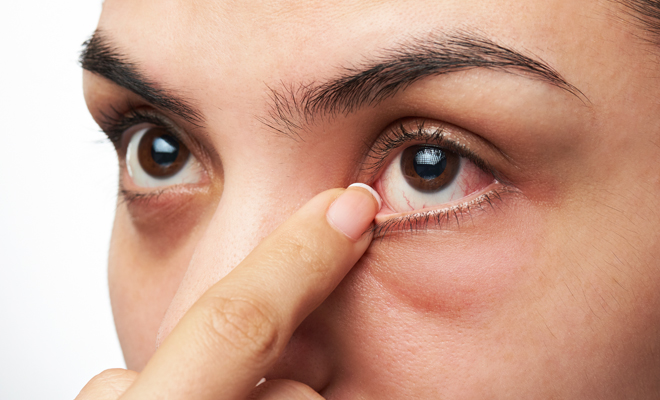 ¿Por qué dan alergia los productos de maquillaje?