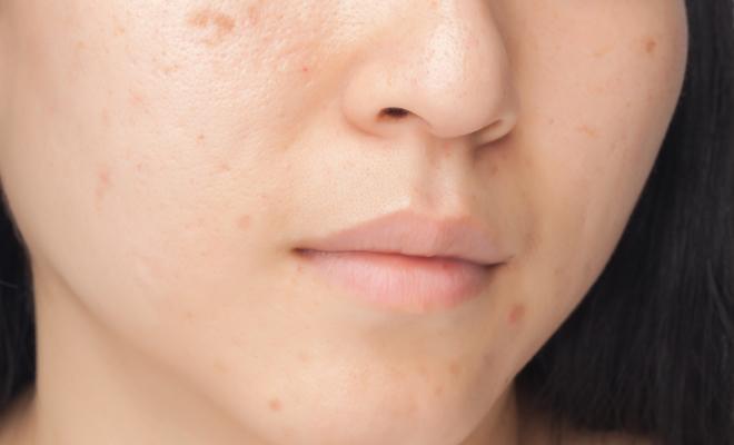 Aprende a cuidar tu piel para prevenir la aparición de marcas de acné