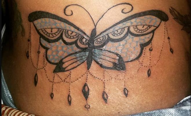 Tapar Estrias Con Tatuaje Sfb