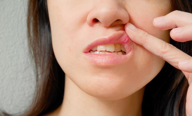 Remedios caseros para curar llagas en la boca de ninos