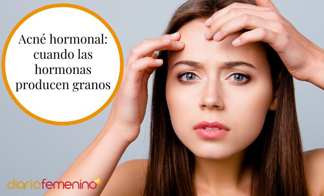 Desorden hormonal tratamiento